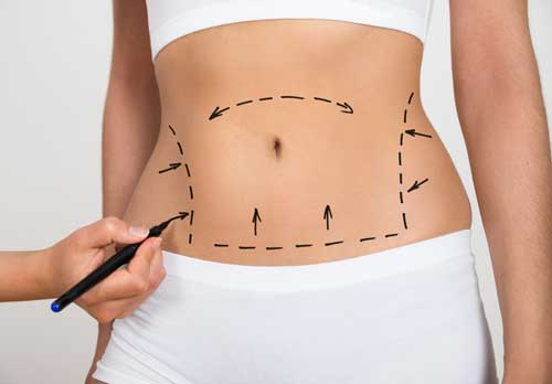 Liposuction Marked Up Body