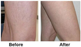 Sclerotherapy before and after results