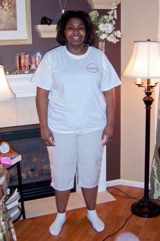 Liz Becker before bariatric surgery