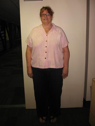 Helen McConkey before bariatric surgery
