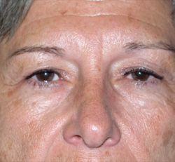 Blepharoplasty - Patient Before Photo