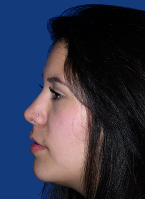 Rhinoplasty patient after photo